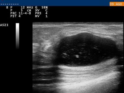 Ultrasound Applications in Veterinary Medicine